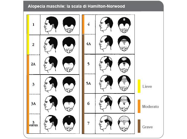 10 classificazioni da collezione frizzifrizzi - Diversi tipi di figa ...