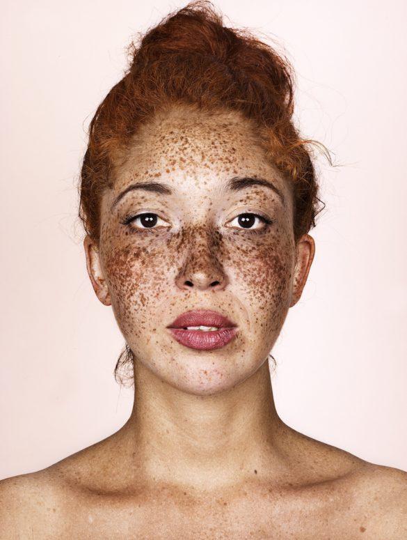 brock elbank freckles 1