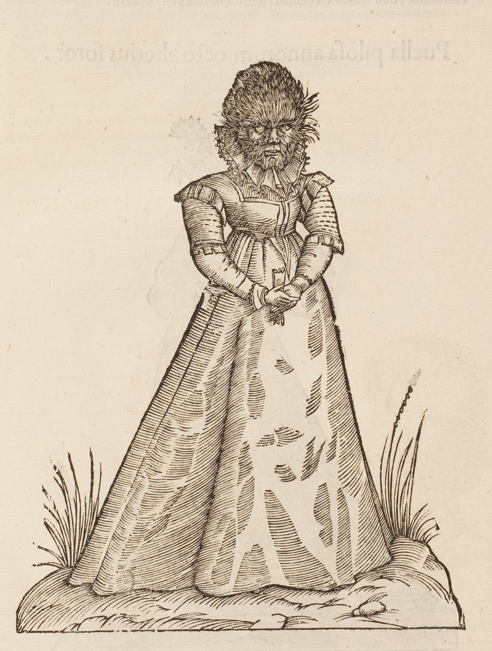 """""""Puella pilosa annorum duodecim"""" (bambina pelosa di 12 anni), tratta da """"Monstrorum Historia"""", di Ulisse Aldrovandi (1522-1605)"""