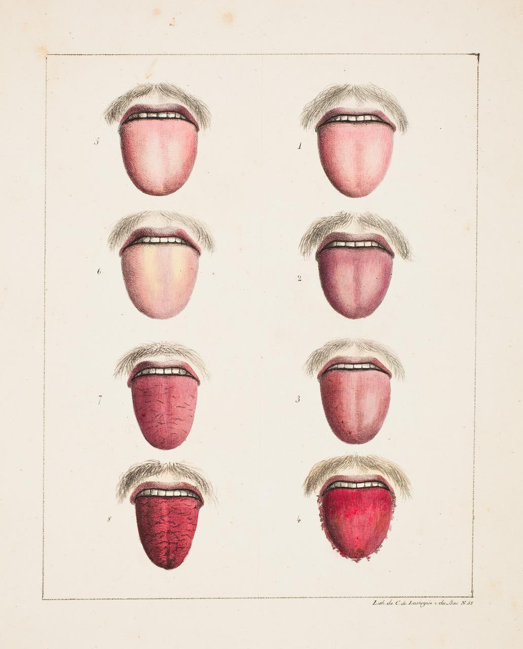 """Observations sur la Fièvre Jaune, faites à Cadix, en 1819"" (litografia sulle manifestazioni facciali della febbre gialla), di Estienne Pariset (1770-1847) e André Mazet (1795-1821)."