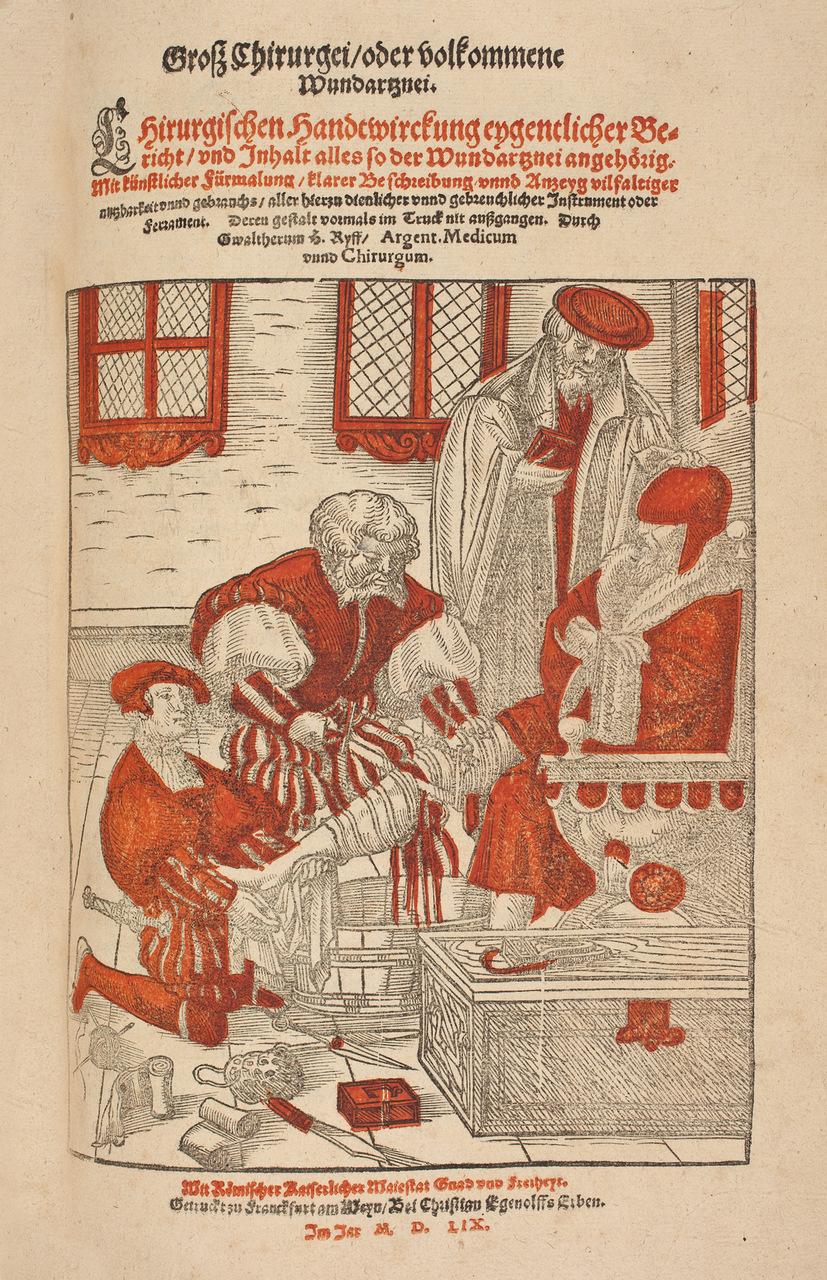 """Amputazione di una gamba. Tavola tratta dal libro """"Grosz Chirurgei"""", di Walter Ryff, 1559"""