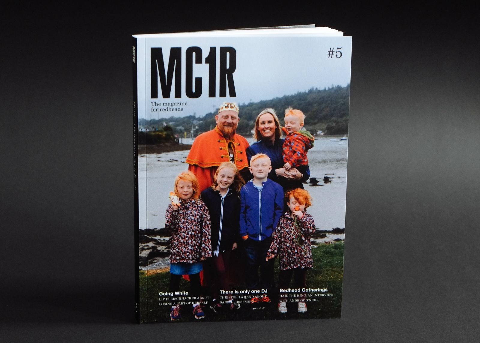 mc1r 5 1