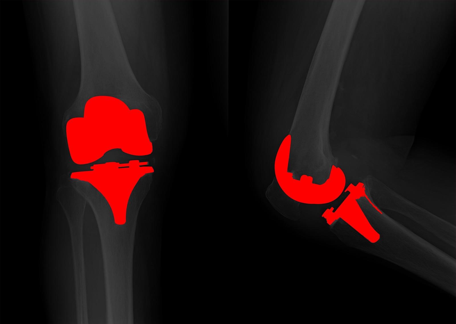 Chiari Alessio protesi ginocchio copia 2